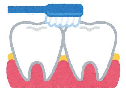 歯と歯の間の歯垢(プラーク)