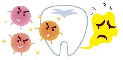 歯垢を除去する方法