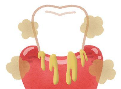 口臭の原因は「歯槽膿漏」