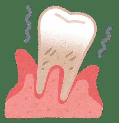 口臭の原因は歯周病